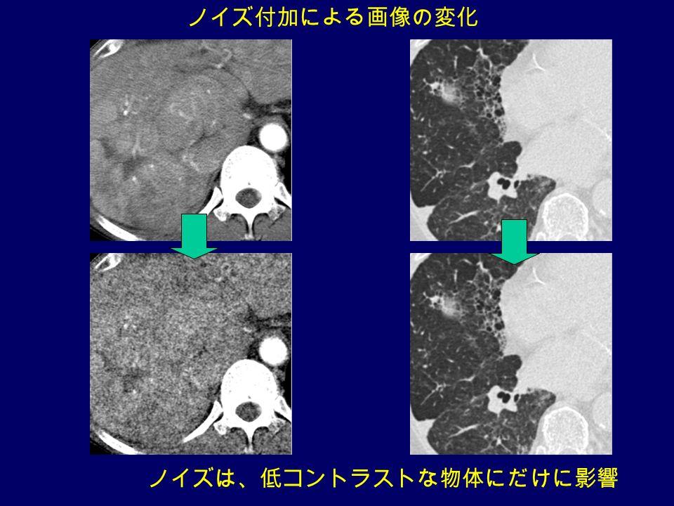 ノイズ付加による画像の変化 ノイズは、低コントラストな物体にだけに影響