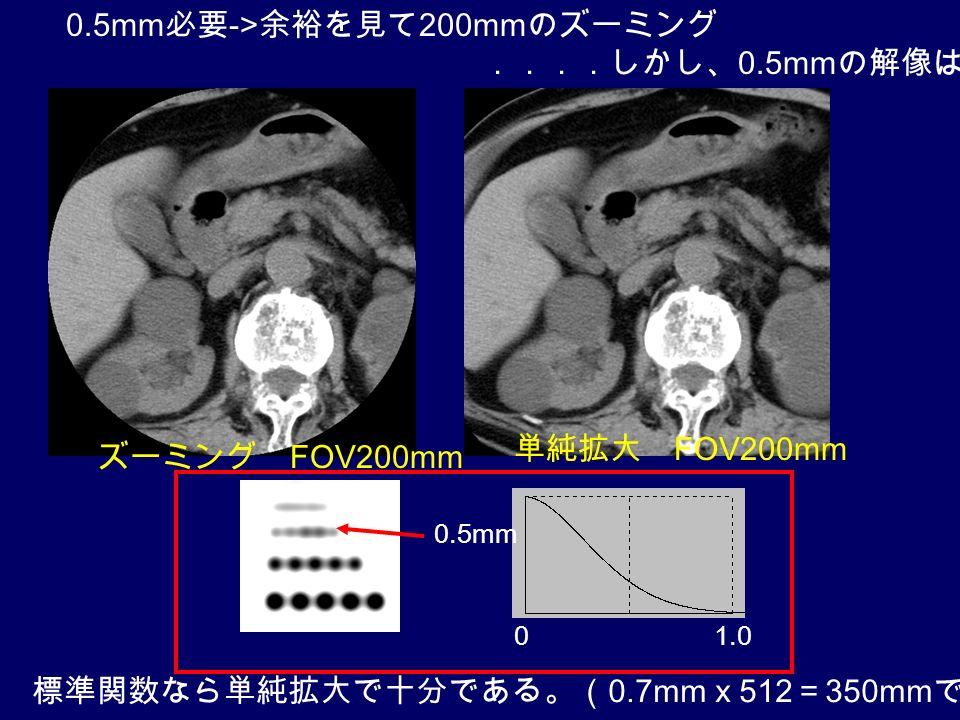 ズーミング FOV200mm 単純拡大 FOV200mm 0.5mm 必要 -> 余裕を見て 200mm のズーミング ....しかし、 0.5mm の解像はあるか? 0.5mm 1.00 標準関数なら単純拡大で十分である。( 0.7mm x 512 = 350mm で十分)