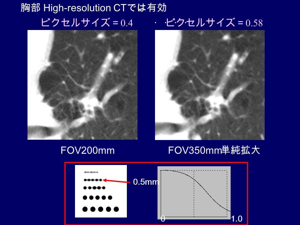 FOV200mmFOV350mm 単純拡大 ピクセルサイズ= 0.4 ピクセルサイズ= 0.58 0.5mm 1.00 胸部 High-resolution CT では有効 ....