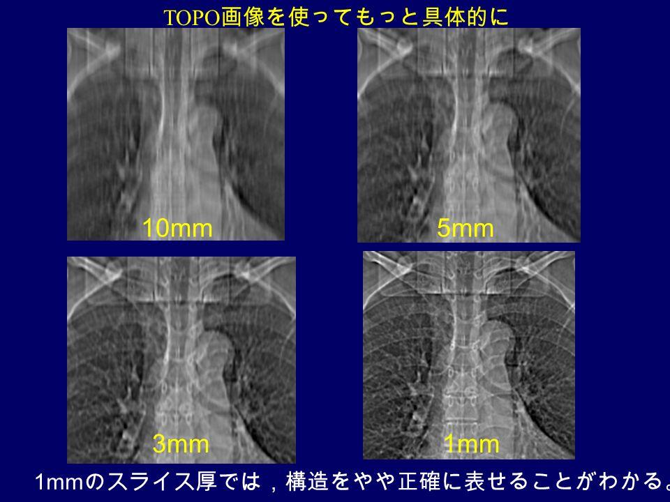 TOPO 画像を使ってもっと具体的に 10mm5mm 3mm1mm 1mm のスライス厚では,構造をやや正確に表せることがわかる。