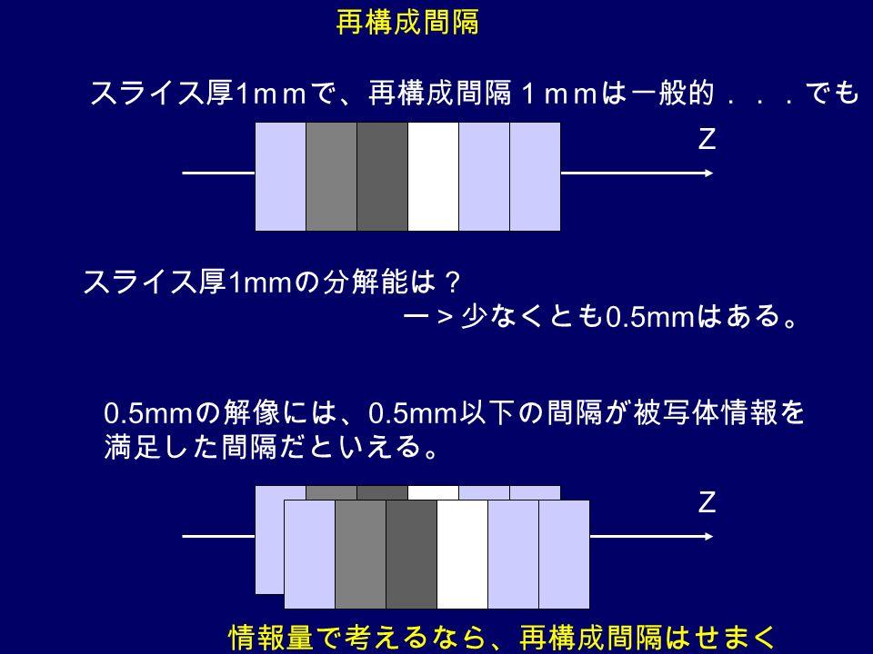 スライス厚 1 mmで、再構成間隔1mmは一般的...でも 0.5mm の解像には、 0.5mm 以下の間隔が被写体情報を 満足した間隔だといえる。 Z Z スライス厚 1mm の分解能は? ー>少なくとも 0.5mm はある。 情報量で考えるなら、再構成間隔はせまく 再構成間隔