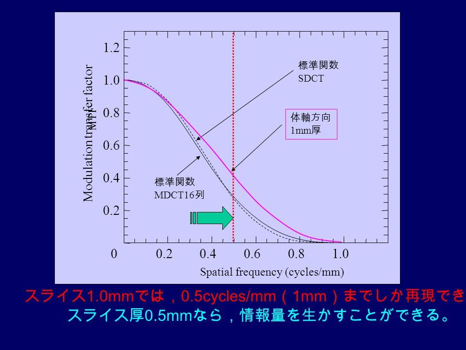MTF スライス厚 0.5mm なら,情報量を生かすことができる。 スライス 1.0mm では, 0.5cycles/mm ( 1mm )までしか再現できない。
