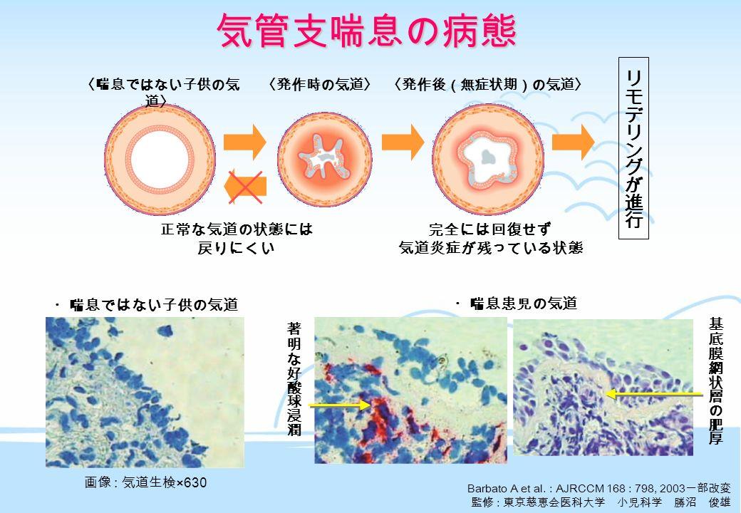気管支喘息の病態 Barbato A et al.