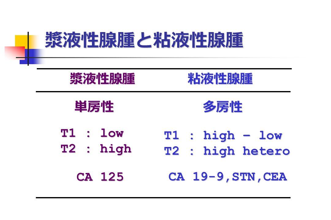 漿液性腺腫と粘液性腺腫 漿液性腺腫 粘液性腺腫 漿液性腺腫 粘液性腺腫 単房性 多房性 T1 : low T2 : high T1 : high – low T2 : high hetero CA 125 CA 19-9,STN,CEA