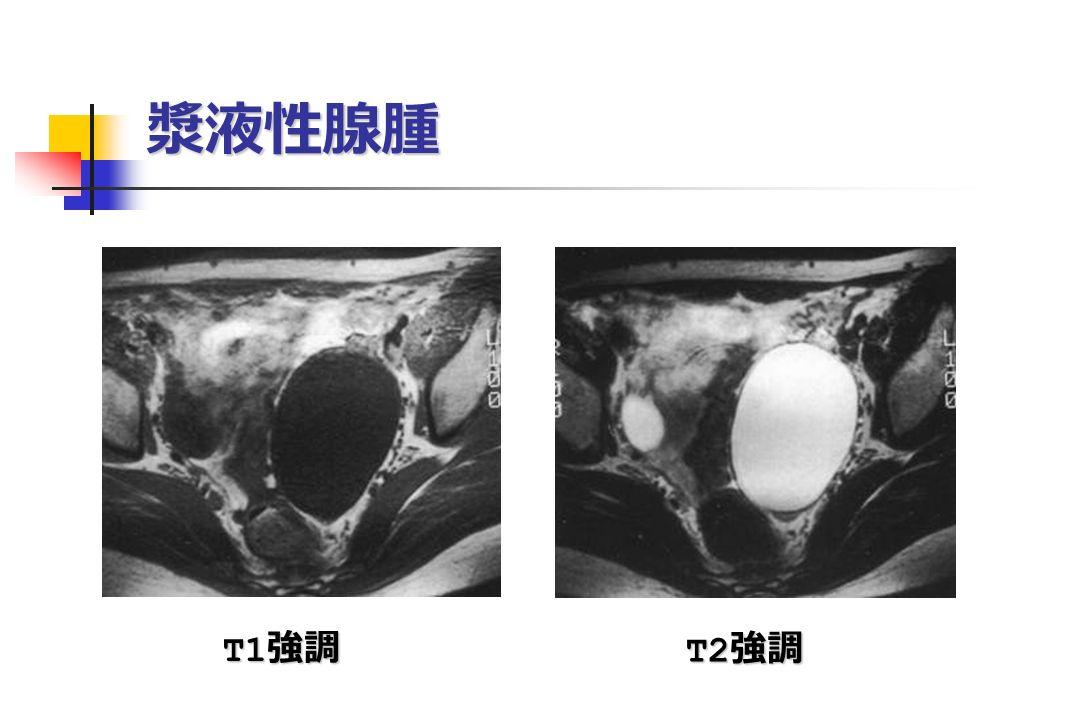 漿液性腺腫 T1 強調 T1 強調 T2 強調