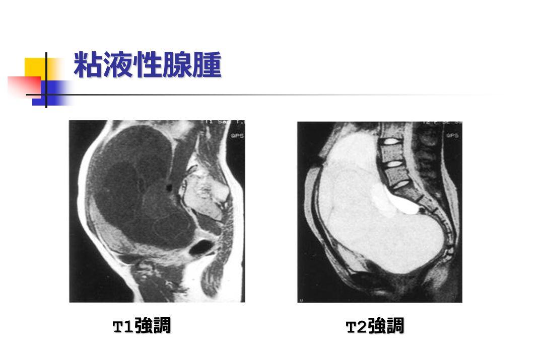 粘液性腺腫 T1 強調 T1 強調 T2 強調