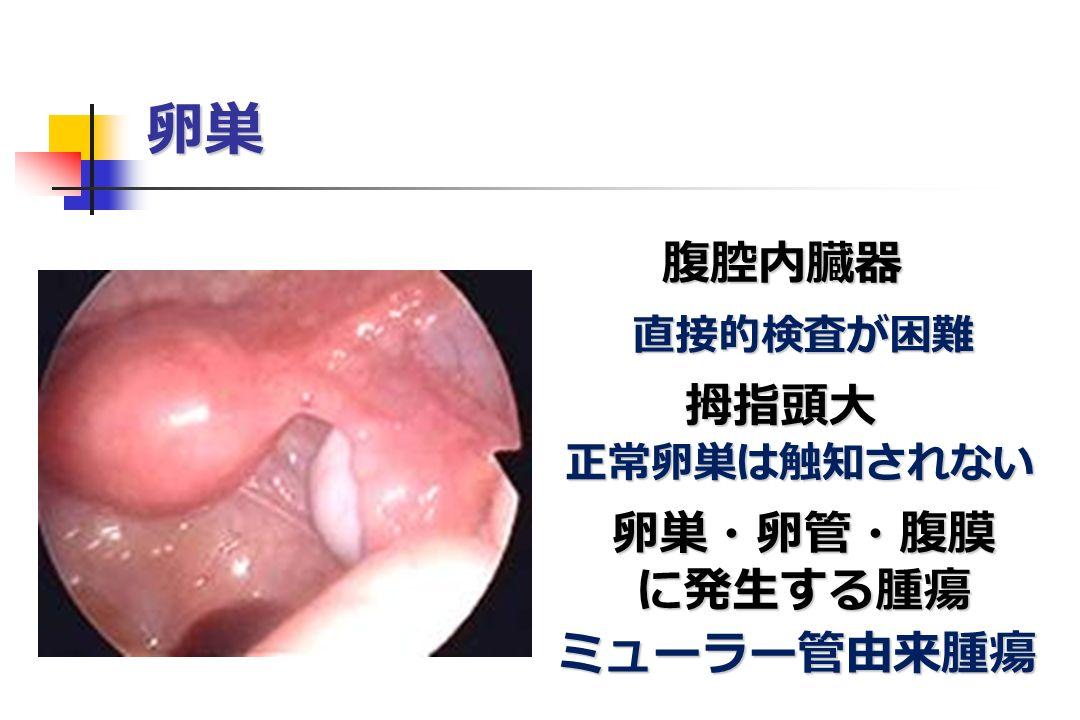 卵巣 腹腔内臓器 拇指頭大 卵巣・卵管・腹膜に発生する腫瘍 ミューラー管由来腫瘍 直接的検査が困難 正常卵巣は触知されない