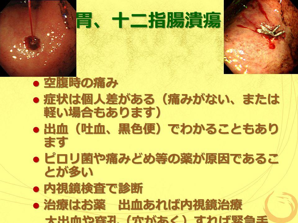 胃、十二指腸潰瘍 空腹時の痛み 空腹時の痛み 症状は個人差がある(痛みがない、または 軽い場合もあります) 症状は個人差がある(痛みがない、または 軽い場合もあります) 出血(吐血、黒色便)でわかることもあり ます 出血(吐血、黒色便)でわかることもあり ます ピロリ菌や痛みどめ等の薬が原因であるこ とが多い ピロリ菌や痛みどめ等の薬が原因であるこ とが多い 内視鏡検査で診断 内視鏡検査で診断 治療はお薬 出血あれば内視鏡治療 治療はお薬 出血あれば内視鏡治療 大出血や穿孔(穴があく)すれば緊急手 術 大出血や穿孔(穴があく)すれば緊急手 術