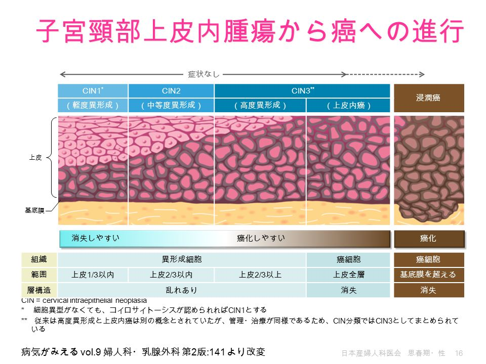 日本産婦人科医会 思春期・性 16 病気がみえる vol.9 婦人科・乳腺外科 第 2 版 :141 より改変 CIN = cervical intraepithelial neoplasia * 細胞異型がなくても、コイロサイトーシスが認められれば CIN1 とする ** 従来は高度異形成と上皮内癌は別の概念とされていたが、管理・治療が同様であるため、 CIN 分類では CIN3 としてまとめられて いる CIN1 * CIN2CIN3 ** 浸潤癌 (軽度異形成)(中等度異形成)(高度異形成)(上皮内癌) 組織異形成細胞癌細胞 範囲上皮 1/3 以内上皮 2/3 以内上皮 2/3 以上上皮全層基底膜を超える 層構造乱れあり消失 上皮 基底膜 消失しやすい癌化癌化しやすい 症状なし 子宮頸部上皮内腫瘍から癌への進行