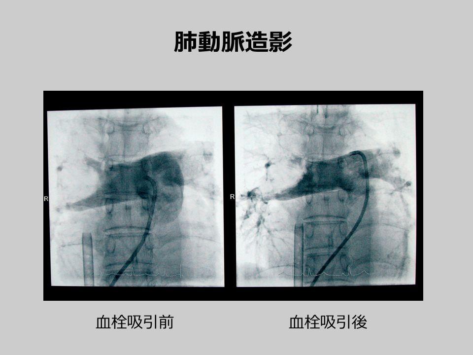肺動脈造影 血栓吸引前血栓吸引後