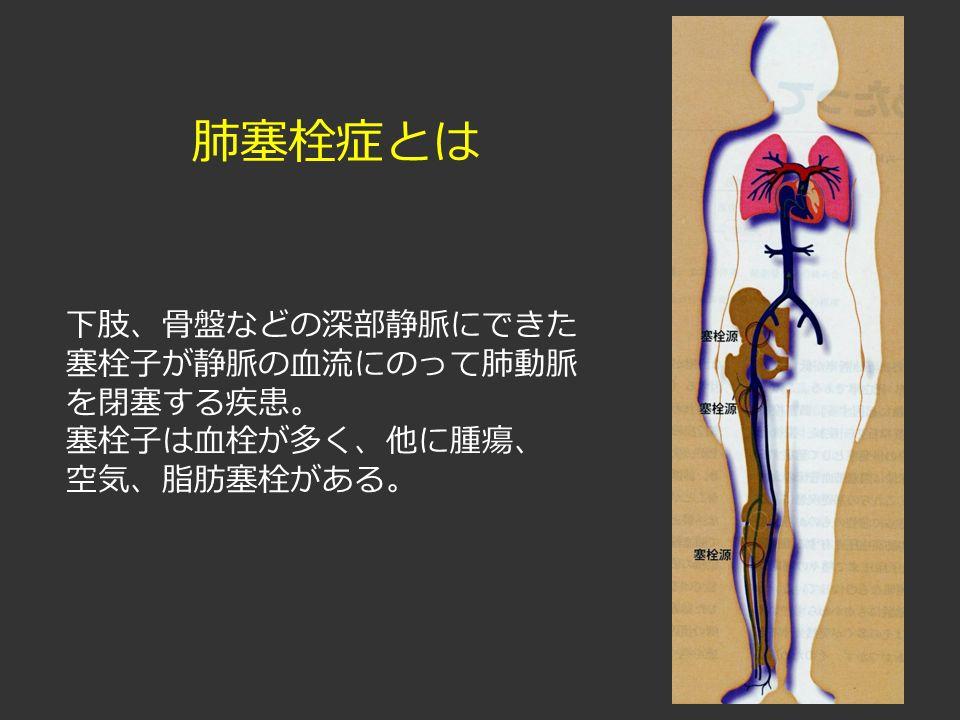 肺塞栓症とは 下肢、骨盤などの深部静脈にできた 塞栓子が静脈の血流にのって肺動脈 を閉塞する疾患。 塞栓子は血栓が多く、他に腫瘍、 空気、脂肪塞栓がある。
