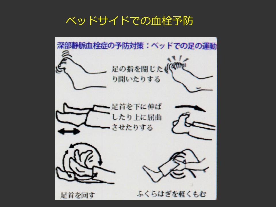 ベッドサイドでの血栓予防