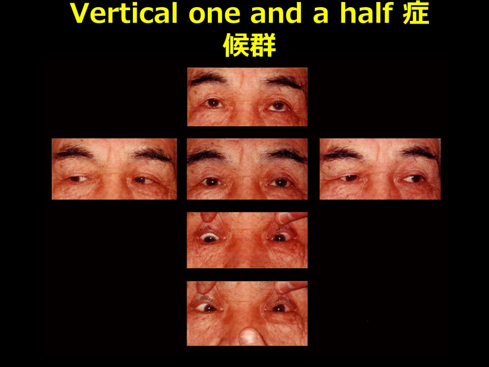 Vertical one and a half 症 候群