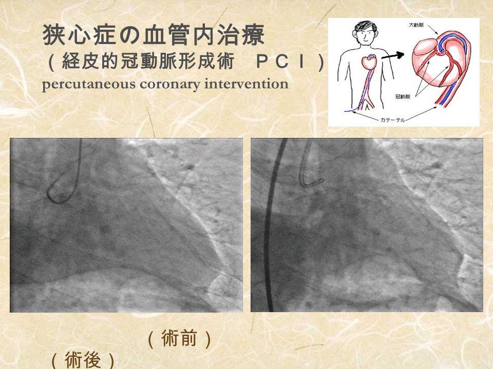 冠動脈狭窄・閉塞とその治療 法 急性冠動脈閉塞血栓溶解療法 冠動脈形成術 冠動脈ステント