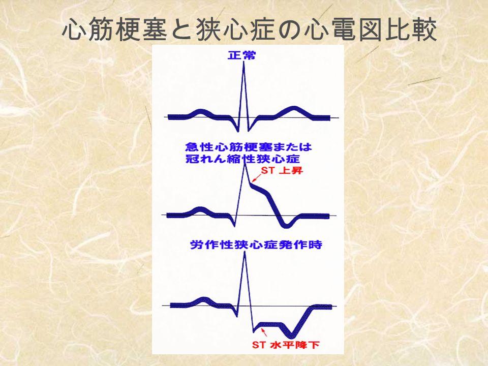 心筋梗塞 【高齢者】 1 /4 非定型的症 状 ⇒ いきなり血圧低下 肺水腫
