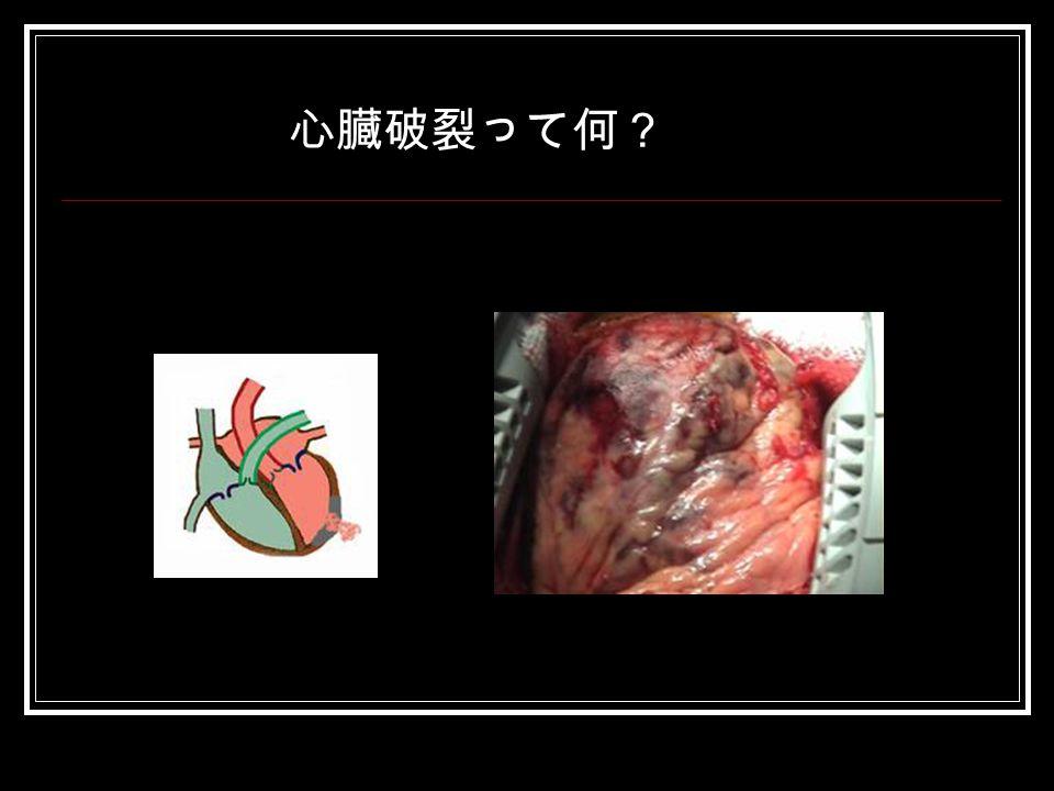 爆発する心臓