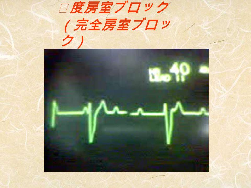 心電図モニター