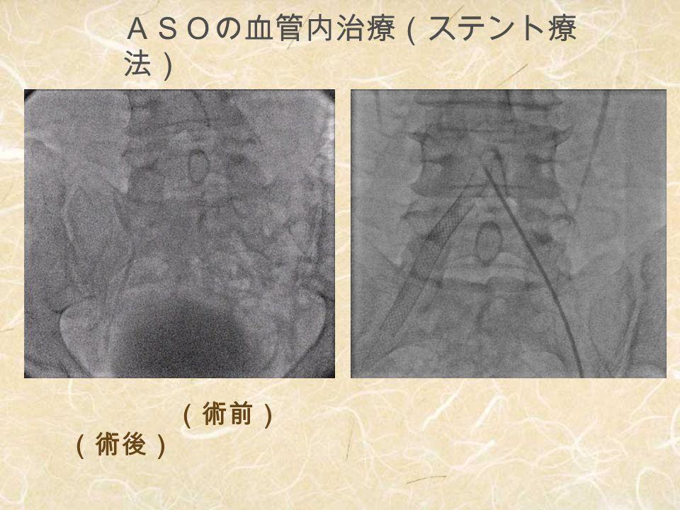 ASO患者の日常看 護 1.下肢の清潔保持 2.除圧・褥瘡予防 (特に、かか と) 3.下肢保温 4.入浴 (側副血行の促 進) 5.打撲に注意