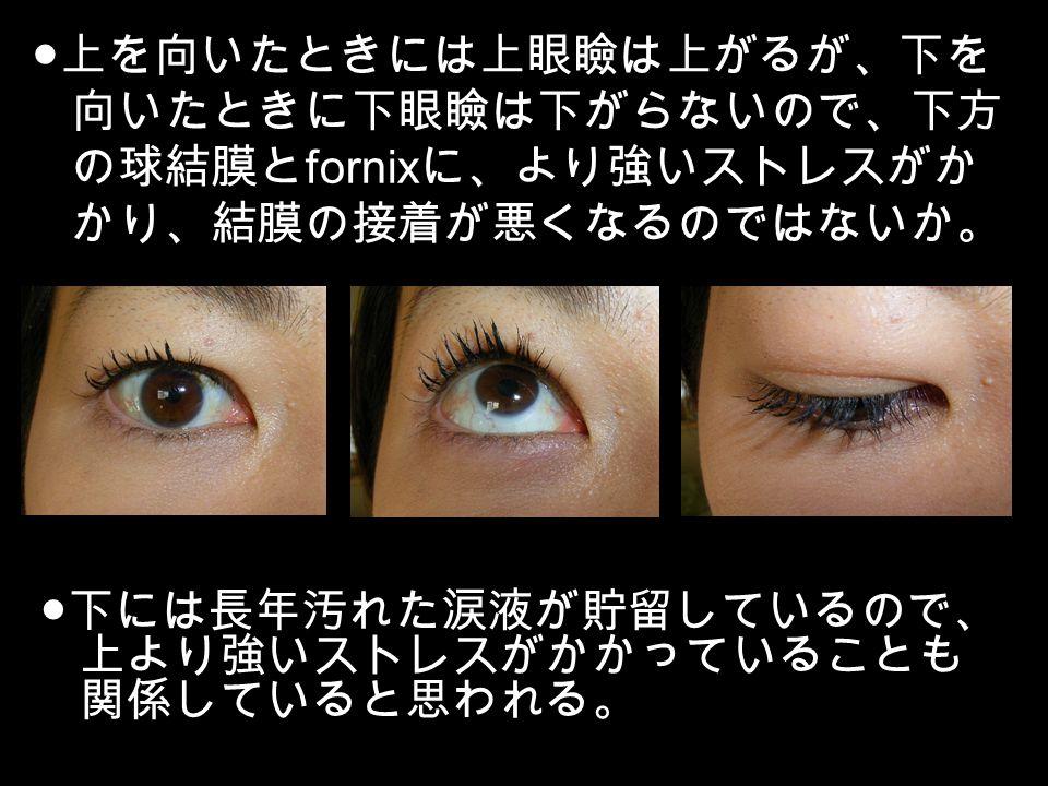 症 結膜 手術 弛緩 東京歯科大学市川総合病院 眼科/疾患別のご説明[結膜弛緩症について]